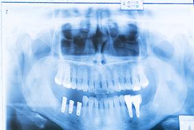 implantes-peq